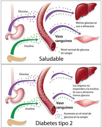 diabetes que es y causas